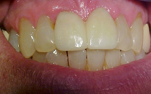 straight and white teeth after