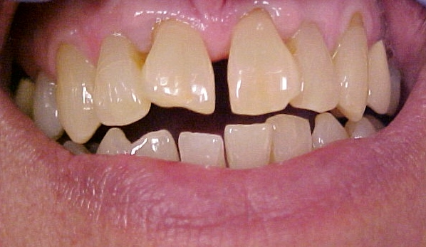 gapped teeth before
