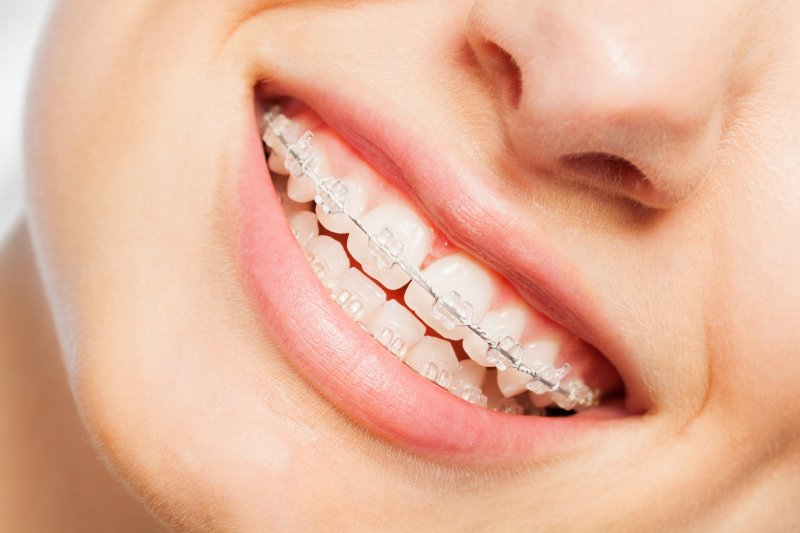 Closeup of patient smiling with clear braces